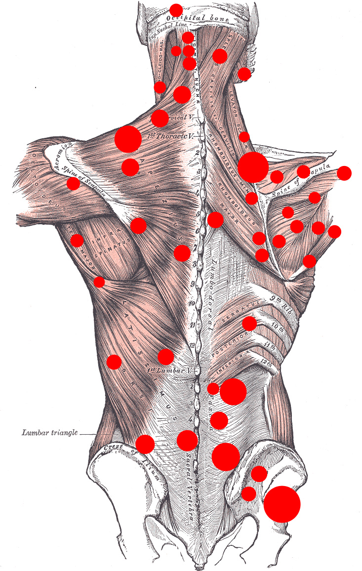 Some mapped trigger points on the back